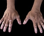 Idiopathic Guttate Hypomelanosis (IGH): Differential Diagnoses