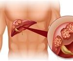 Secondary Liver Cancer