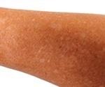 Idiopathic Guttate Hypomelanosis (IGH)