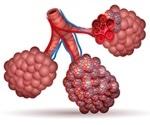 Walking Pneumonia versus Pneumonia