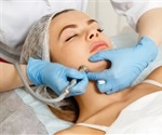 Who Can Perform Dermabrasion?