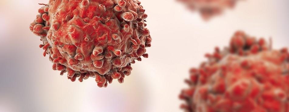 The importance of spotting leukemia