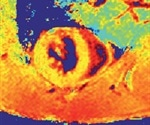 Morphometry and Functional Assessment in Mice Using Cardiac MR Imaging