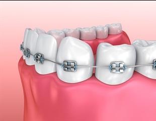 Types of Dental Braces
