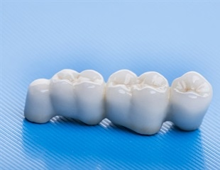 Care for Dental Bridges