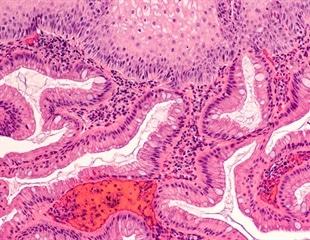 Barrett's Esophagus Preventing Progression