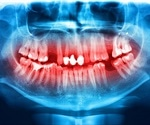 Bioactive Glass Used in Bacteria Inhibiting Tooth Fillings