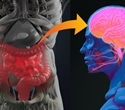 Gut-Brain Axis and Neurodegenerative Disorders