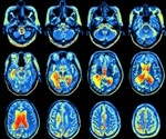 New brain mapping technique reveals link between connectivity and IQ