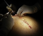 Obesity surgery reduces the risk of death by half finds new study