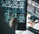 Pfizer to stop Alzheimer's and Parkinson's disease research