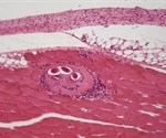 Trichinellosis Epidemiology