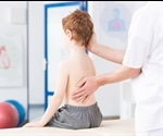 Study links poor manganese uptake to scoliosis