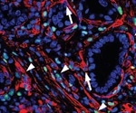 Molecular breakthrough may improve prognosis for pancreatic cancer