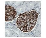 PrecisA Monoclonals: Atlas Antibodies' Exceptional Antibodies
