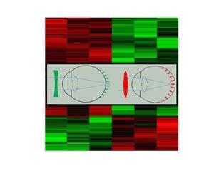 Molecular pathways underlying myopia open new ways for drug development