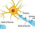 Small Fiber Neuropathy Diagnosis and Treatment