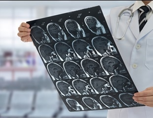 Stress can cause memory loss and brain shrinkage finds study