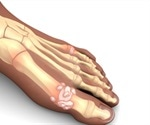 Genes cause gout not diet