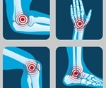 Most Common Types of Arthritis