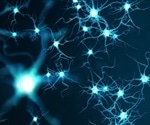 Artificial intelligence technology improves prediction of Alzheimer's disease