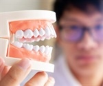 What Foods Are Bad for Your Teeth and Mouth?