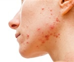 Acne Diet Dos and Don'ts