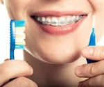 Taking Care of Your Teeth with Braces