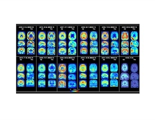 Researchers identify potential diagnostic tool for Alzheimer's disease