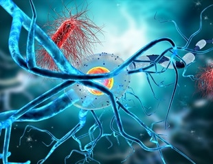 Autoimmune Encephalitis Treatment