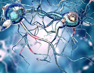 Autoimmune Encephalitis Classification