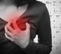 Heart attack symptoms often missed in women