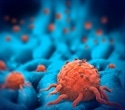 Scientists design nanorobots that seek and destroy tumor cells