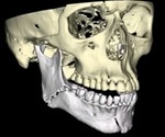 What are Mandibular Fractures?