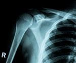 Encouraging Bone Defect Repair with Bioactive Glass