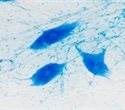 Discovery aids understanding of amyotrophic lateral sclerosis