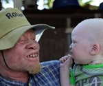 Albinism Causes