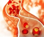 Higher cholesterol levels tied to reduced risk of dementia in elderly finds study