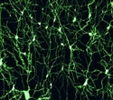 Study uncovers new target in Parkinson's disease