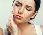 Radicular Cysts