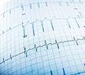 Scientists link protein to seizure suppression