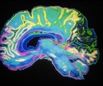 Wearable brain scanner enables brain imaging whilst moving