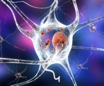 FDA re-examining safety of new drug approved for Parkinson's disease psychosis