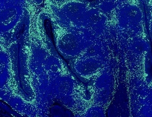 Researchers uncover how obesity leads to cancer in epithelial cells