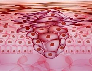 Metastasis Process