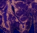 Scientists create organoids that could help guide bladder cancer treatment