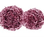 Erlotinib, gefitinib have similar efficacy in NSCLC patients with EGFR mutation