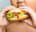 The effects of obesity can be seen in children as young as eight