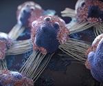 Researchers identify novel target for bladder cancer