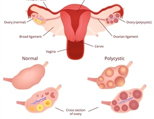 Polycystic Ovary Syndrome and Metabolic Syndrome